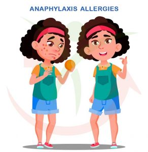 Anaphylaxis, Genmedicare, Genhealthtips
