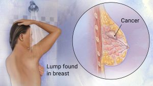 Breast_Cancer, genhealthtips