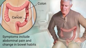 Colorectal_Cancer, genhealthtips