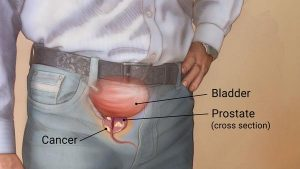 Prostate-Cancer, genhealthtips