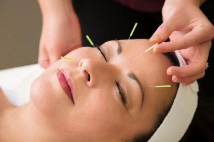 Acupuncture for Immunity, genhealthtips