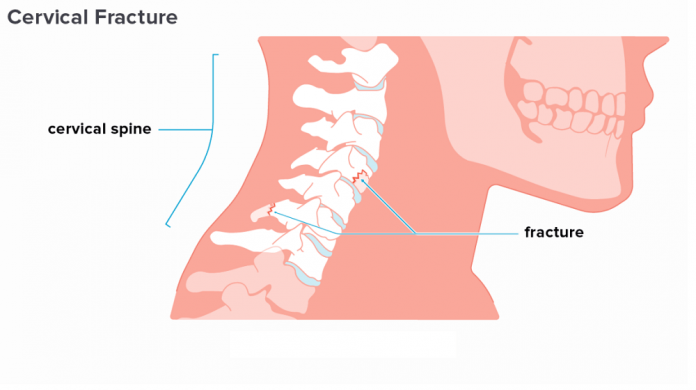 Fractures of the Neck of the Scapular